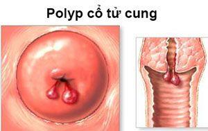 polyp-tu-cung-va-nhung-dieu-can-biet