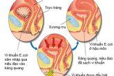 [Tổng Hợp] Các nguyên nhân gây viêm đường tiết niệu cần biết