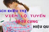 [ Cùng tìm hiểu] 7+ Cách chữa trị viêm lộ tuyến cổ tử cung hiện nay