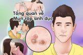Nguyên nhân mụn rộp sinh dục và cách điều trị mụn rộp sinh dục hiệu quả