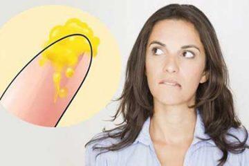 Ngứa vùng kín khí hư màu vàng- Giải đáp từ các chuyên gia