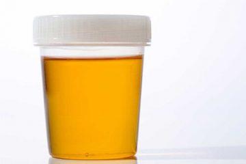 Tiểu buốt nước tiểu vàng là triệu chứng của bệnh gì?